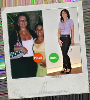 Magrella Ferrara centro dimagrimento clinica per dimagrire dieta facile veloce perdere peso prima e dopo 3