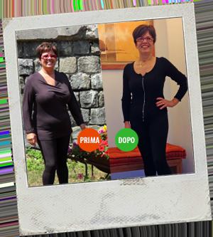 Magrella Ferrara centro dimagrimento clinica per dimagrire dieta facile veloce perdere peso prima e dopo 4